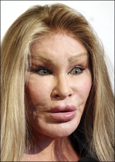 Die besten 25 Bad celebrity plastic surgery