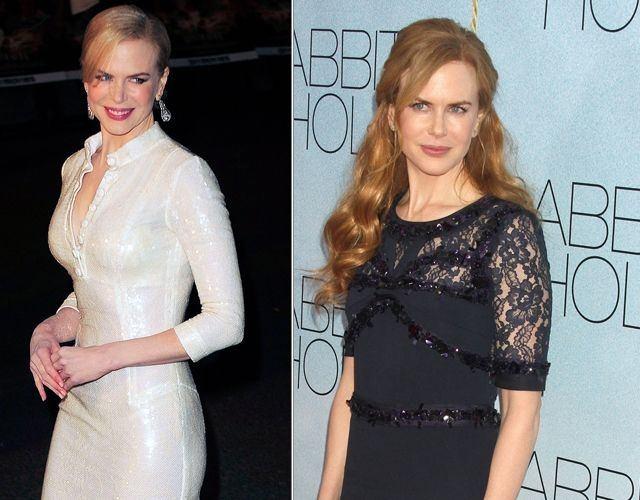 Los pechos operados de Nicole Kidman antes y después