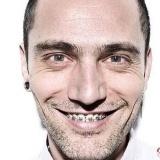 David Delf�n luce ortodoncia para separar sus dientes