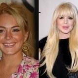 Lindsay Lohan, otro ejemplo de c�mo estropear una cara bonita por pasarse demasiado tiempo en quir�fano