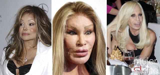Foto Las peores operaciones estéticas de las famosas