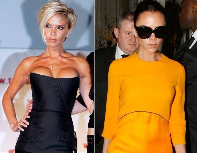 Foto Los pechos operados de Victoria Beckham antes y después