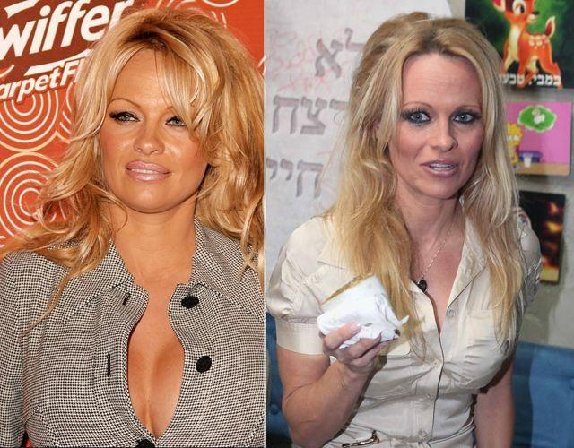 Foto Los pechos operados de Pamela Anderson antes y después
