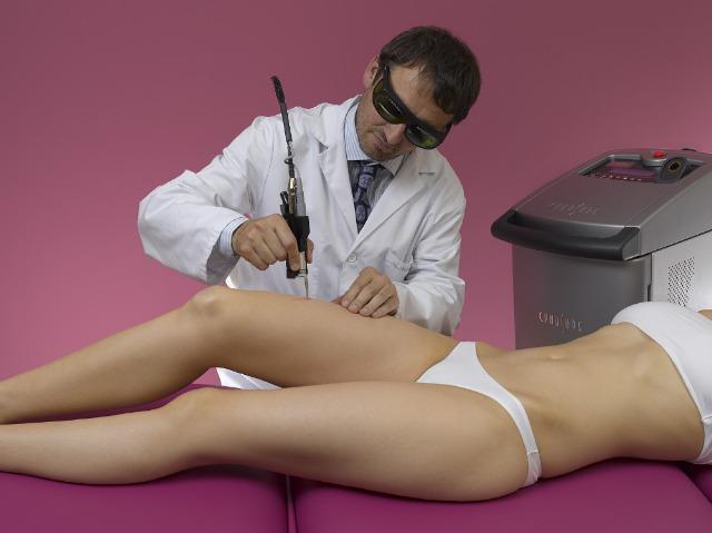 Foto Preguntas y respuestas sobre depilación láser