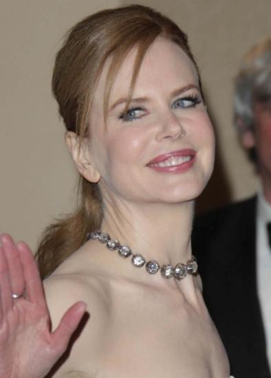 Foto Nicole Kidman y su aumento de pómulos