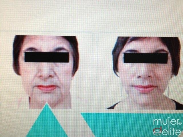Foto Lifting facial con la técnica VLift Pro: Antes y después