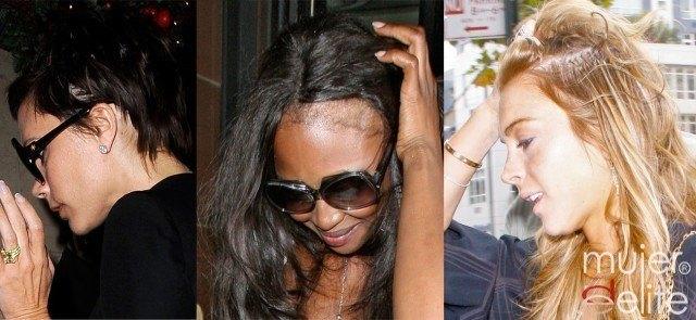 Foto Victoria Beckham, Naomi Campbell y Lindsay Lohan sufren alopecia