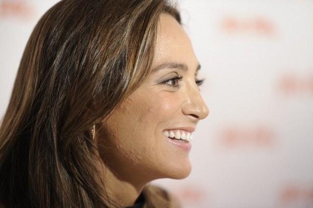 Foto Tamara Falcó sufre un brote de acné