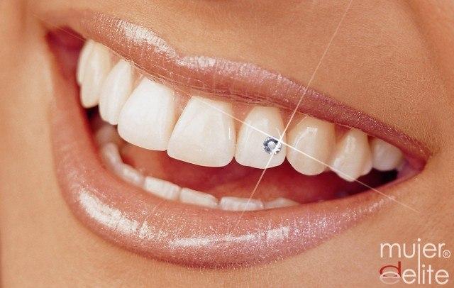 Foto La joyería dental es la última tendencia de moda