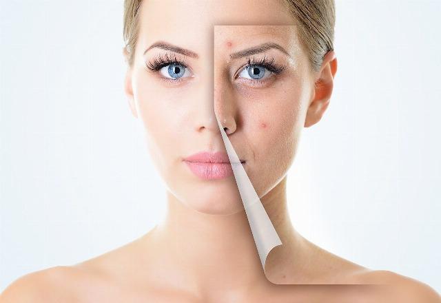 Foto Así eliminarás el acné, espinillas, granos, puntos negros e imperfecciones