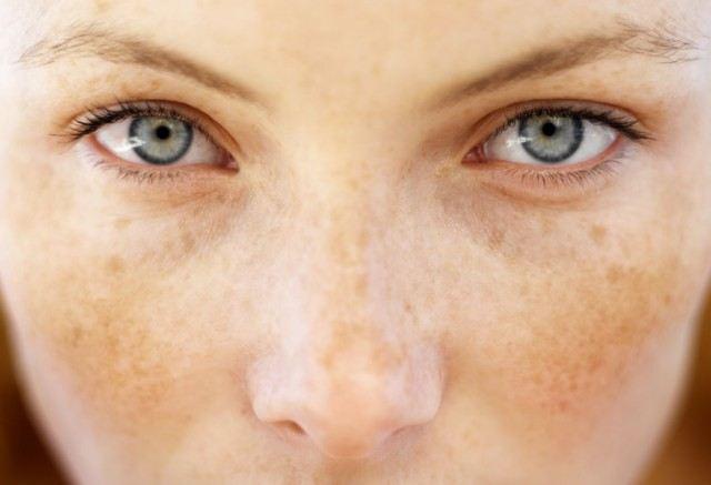 Foto Trucos de maquillaje para tapar con éxito las manchas solares