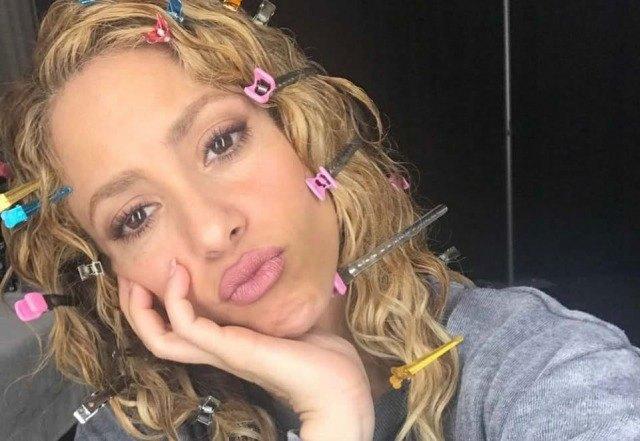 Foto El supuesto aumento de labios de Shakira