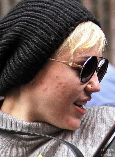 Foto Miley Cyrus tiene problemas de acné