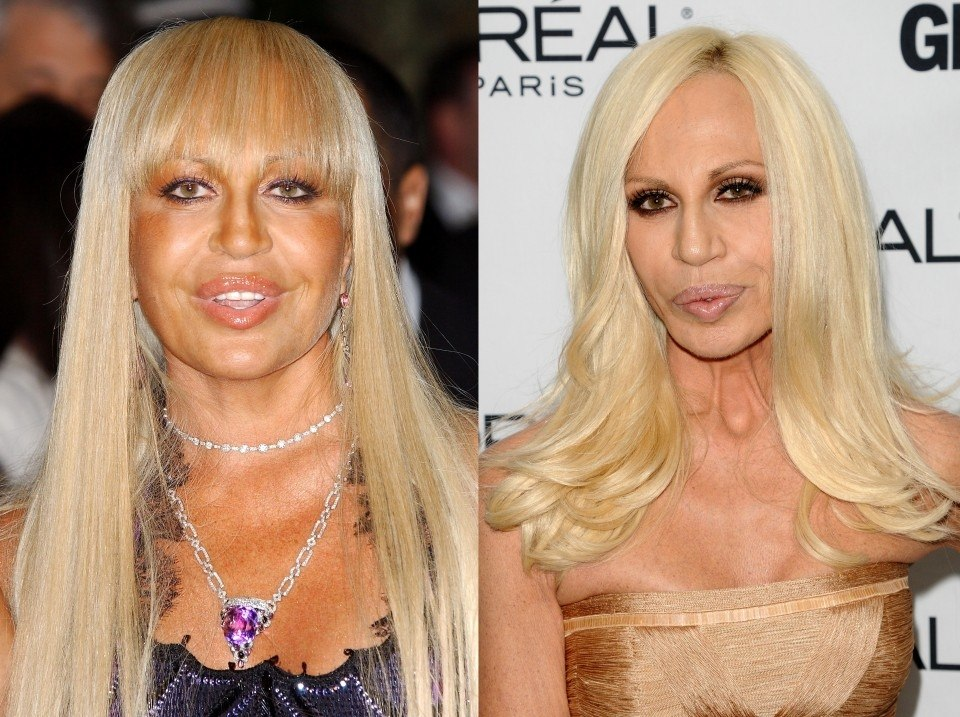 el antes y el despu s de donatella versace mujerdeelite. Black Bedroom Furniture Sets. Home Design Ideas