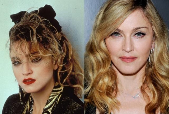 Foto El antes y el después de Madonna