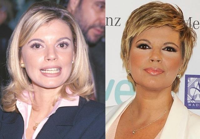 Foto El antes y después de Terelu Campos