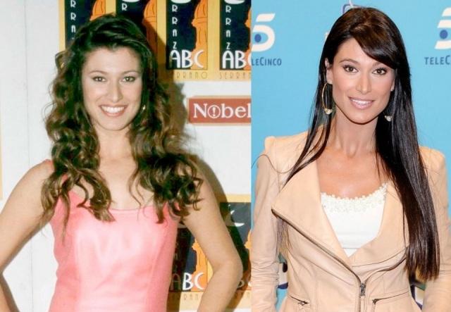 Foto El antes y el después de Sonia Ferrer